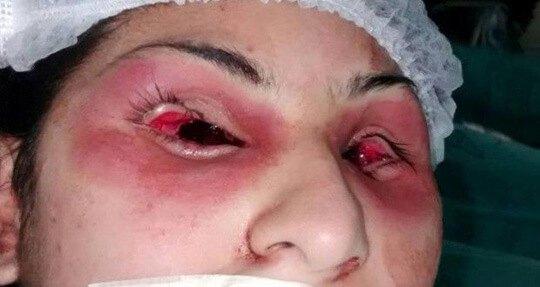 両目をエグリ取られた女性のグロ画像