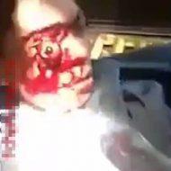 【グロ動画】こぼれちゃう!こぼれちゃうよ!!!事故で顔面負傷してお目目が飛び出しすぎてゾンビっぽくなった男性をご覧くださいw