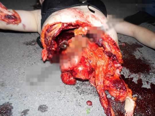 少女飛び降り自殺死体のグロ画像