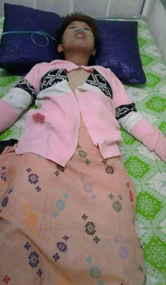 地雷で傷ついた少女達のグロ画像