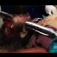 【グロ画像】これまだ生きてるんだって 事故で顔面に鉄骨が突き刺さった女性の顔が閲覧注意過ぎる・・・