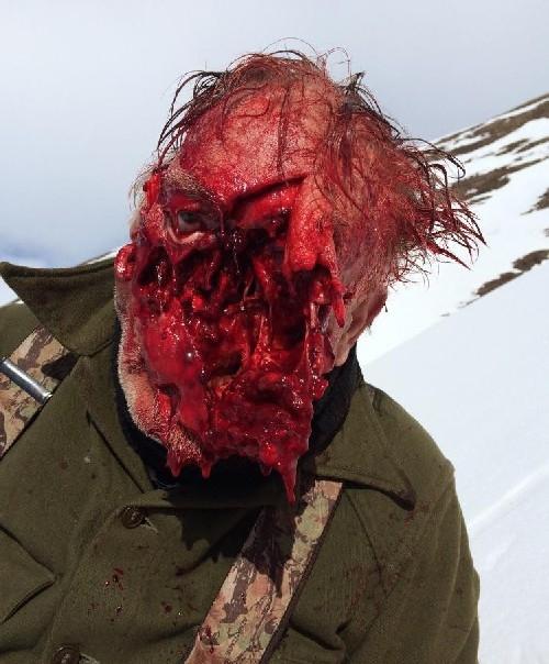 クマに襲われた男性のグロ画像