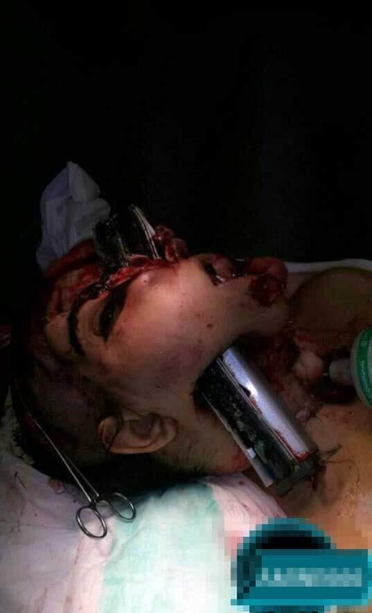 事故で鉄骨が顔面に刺さった女性のグロ画像