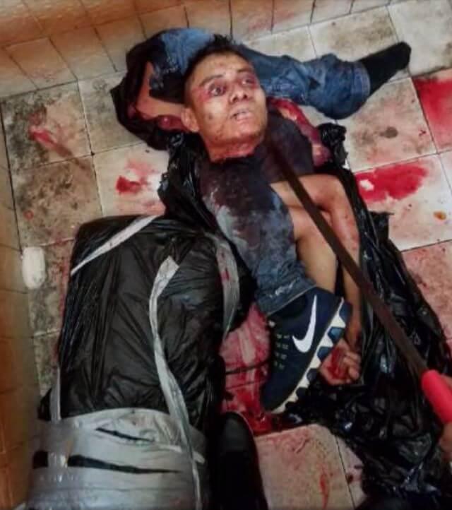 麻薬戦争の死体グロ画像
