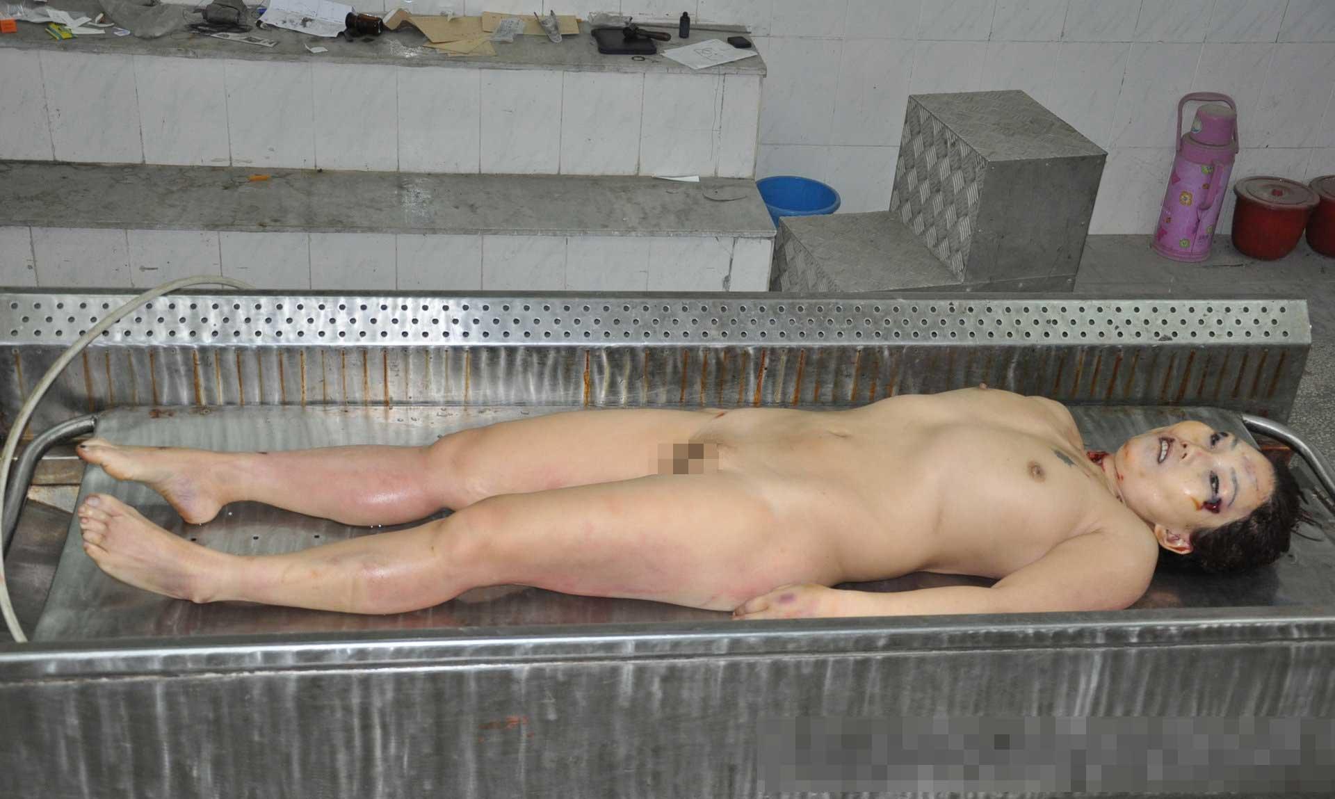 女の子全裸解剖グロ画像
