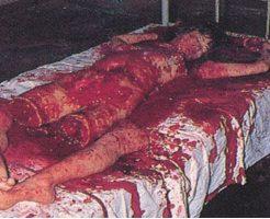 【グロ画像】四肢切断 頭は行方不明 腹は切り刻まれ 旦那に惨殺された女の死体がエグ過ぎる・・・