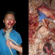 【グロ動画】首を縄で縛りつけられ惨殺されバラバラに解体された男性 頭が縦に割れてる・・・
