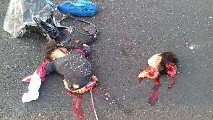 少女事故死体グロ画像