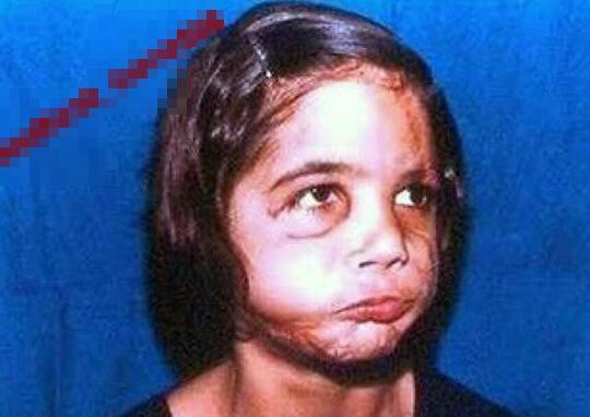顔面の皮が剥がれた11歳の少女のグロ画像