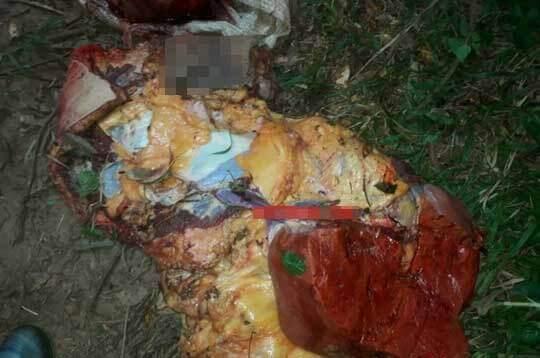 四肢切断バラバラ死体のグロ画像