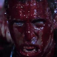 【グロ動画】もうこれ死ぬわ マチェットでズタズタに切りつけられた少年 血まみれで虫の息に・・・