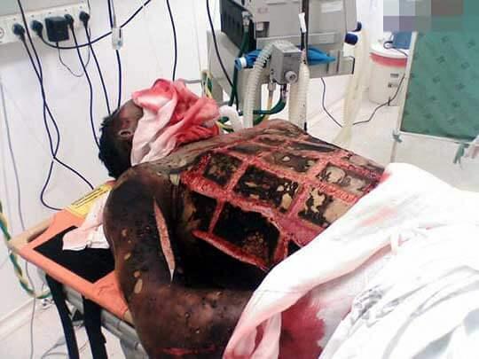 感電事故で重傷グロ画像