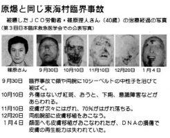 【東海村臨界事故】大量の放射線を浴びて死者が出た国内の原発事故