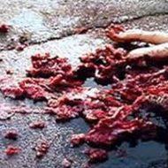 【グロ動画】車に轢かれて引きずられた少女さん 肉片撒き散らしてズタボロになってる・・・