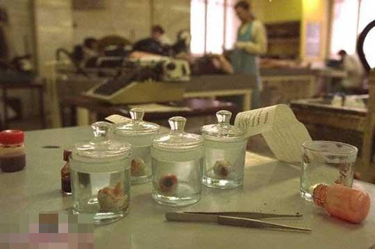 人体標本の加工工場グロ画像