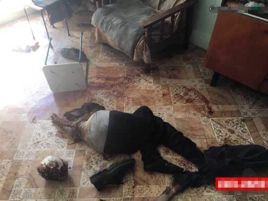 虐待していた飼い犬に食われた男のグロ画像