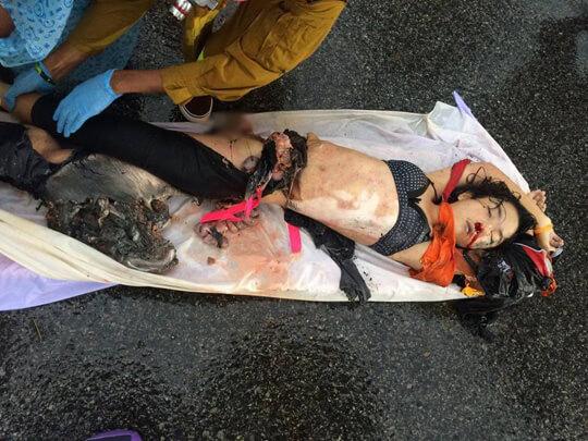 事故死した若い女性画像