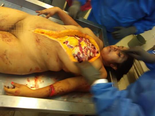 女性全裸死体オマンコ丸見え解剖