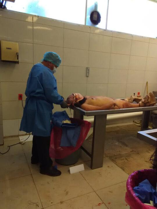 女全裸死体解剖画像