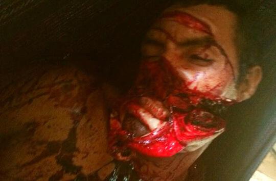 顔面をナタで切りつけられた男性