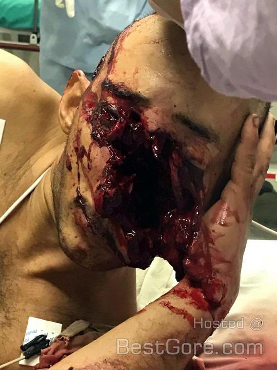 ライフルがジャムって顔面を失った男