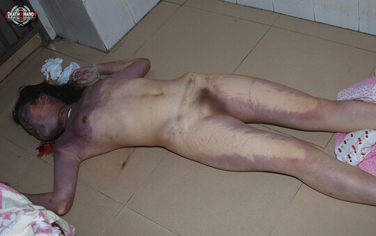 レイプされ殺害後、マンコとアナルを灰皿代わりにされた売春婦