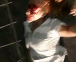 頭を強く打った女性が死ぬ直前のデスダンス