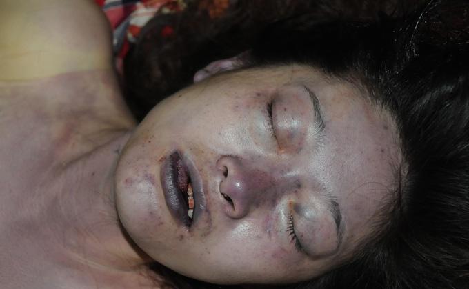 美しさの絶頂の最中、レイプ殺人により絶命した少女…死斑があることを除けば比較的キレイな死体写真