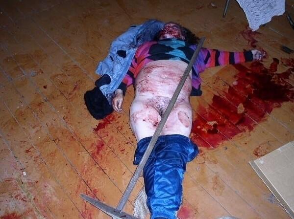 肛門にホウキで浣腸!された女さん、アナル大拡張から内蔵破裂で死亡