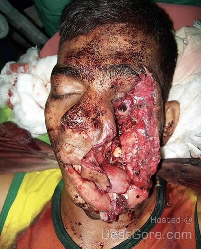 拳銃自殺を失敗すると待っているのは生き地獄…左目と舌の半分をグチャグチャになっても死ねなかった男のグロ画像