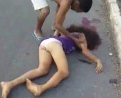 ティーン少女が事故って頭がパックリ割れて死亡…号泣しながら死体を抱くおとうさん※閲覧注意