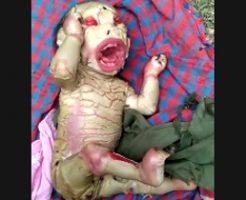 【動画】奇形児?火傷?仮装?見たらトラウマ確定のまるで悪魔のような赤ちゃんが発見される・・・