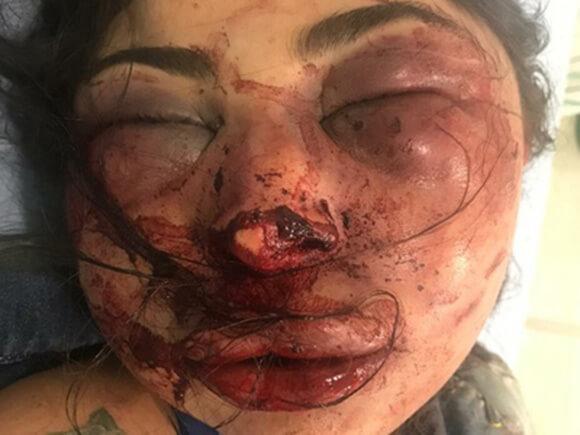 えげつないほどボッコボコに顔を殴られて殺害された女性の画像が惨い…