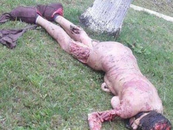 飼い犬に食い殺された女性、全身の肉を食い千切られて無残な姿に…