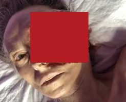 眼球癌になったけどお金無いから病院に行かなかった結果→原型が無いどころか腐敗してるんだが。。。