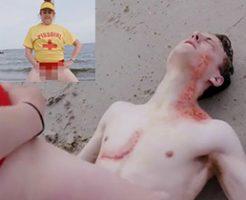 クラゲに刺された怪我人にジョボジョボとおしっこをぶっかける救助活動がヤバいw