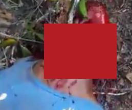 【閲覧注意】マチェーテで斬られた喉から大量の血が噴き出る…