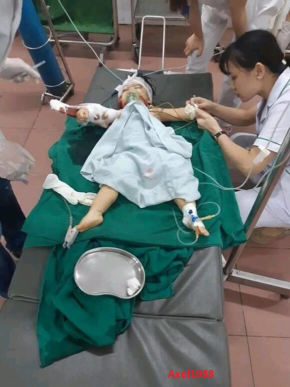 人間失格レベル!妻と子に手を掛け顔面をズタボロに切り裂く…
