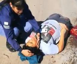 バイクで事故った女性の両太ももから下が完全にグチャグチャ…