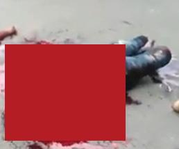 手足のもげた男性が血まみれでのた打ち回ってる姿が撮影される…