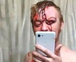 いや、病院行けよw事故で怪我した個所を自撮りする血まみれの男性w