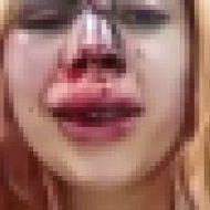 警察にぶん殴られた女の子の顔が酷いことに…w
