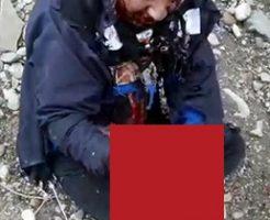 自家製の爆薬が手元で爆発した男性の姿がグロすぎ…