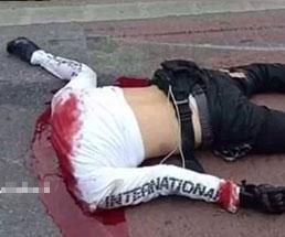 バイクで事故を起こした男性、目を見開いたまま生首に…