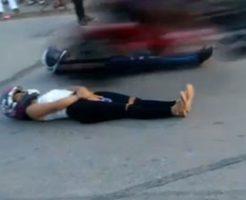 バイクスタント失敗!エキストラの女性が骨が見えるくらいの怪我を負う…