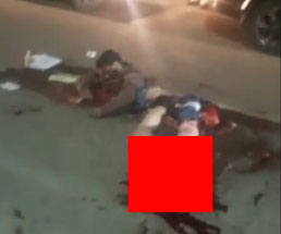 【閲覧注意】トラックに飛び込み自殺した男性の身体はこうなる…