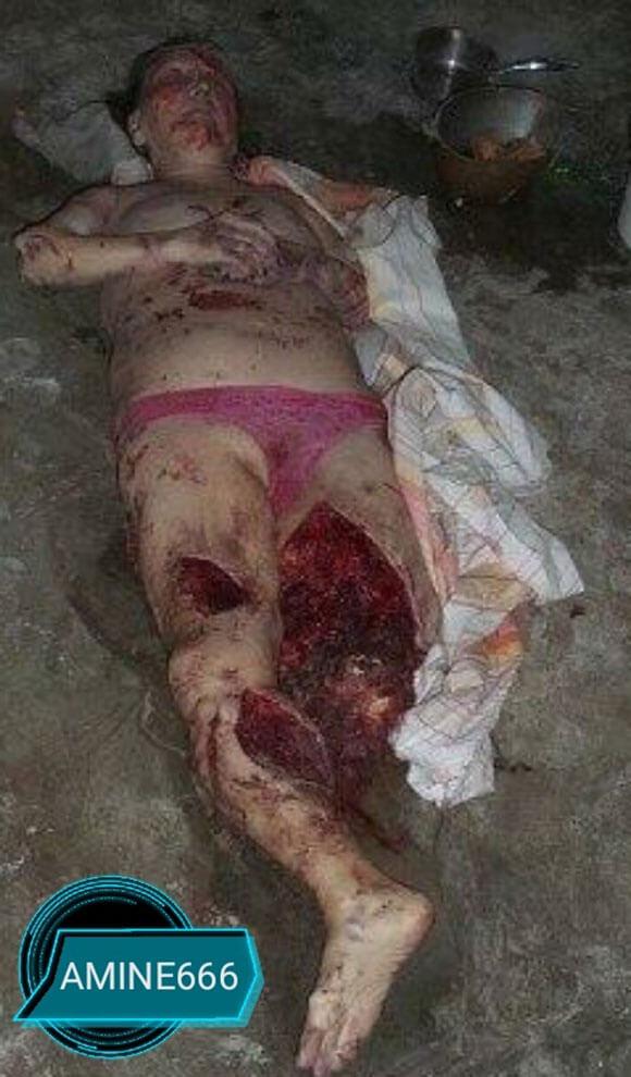 爆発に巻き込まれた女性、足がもうめちゃくちゃ…