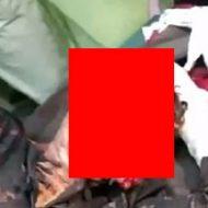 【閲覧注意】寝ている間にピットブルに襲われた女性、顔面が原型を留めてない…