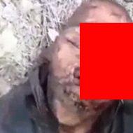 誤射によって顔面に穴が開いてしまった男性が苦しそうに呻く…