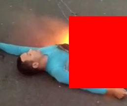 バイク事故で下半身だけ燃えている男性の死体…